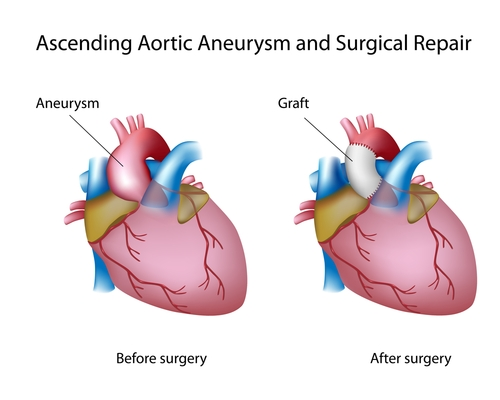Psoriasis and aortic aneurysms