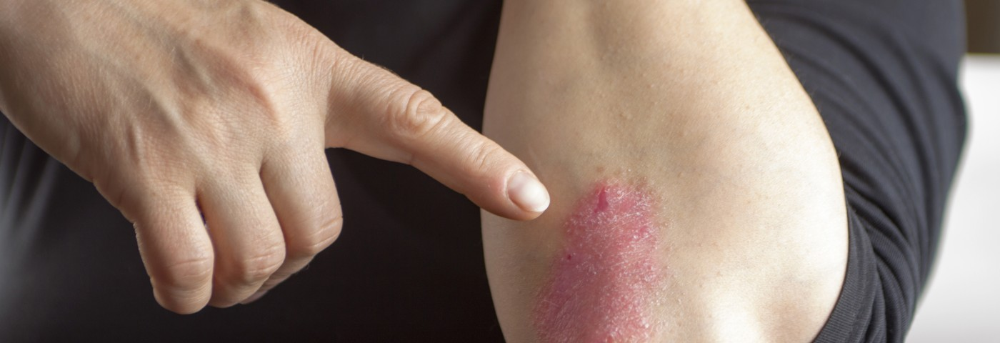 Laser Therapy for Psoriasis Shows No Indication of Koebner Effect, According to Study