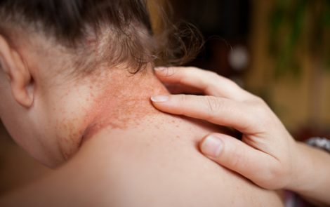 XTRAC Light Therapy Effectively Treats Psoriasis Lesions Without the Serious Side Effects of Rival Therapies, Says Strata