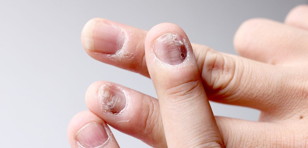 Pfizer's Xeljanz Reduced Nail Psoriasis in Phase 3 Trials of Plaque Disease