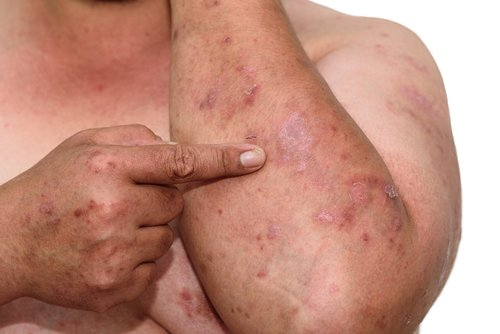 guselkumab for plaque psoriasis